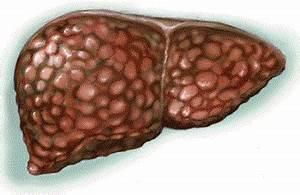 Лекарство для лечения печени гепатит