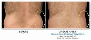 Before and After Galleries | CoolSculpting | CoolSmooth ...