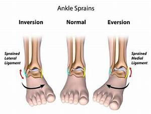 Sprains And Strains Are Common Soft Tissue Injuries  Most