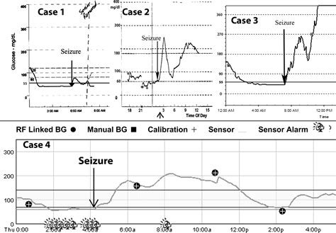 duration  nocturnal hypoglycemia  seizures