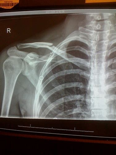 positives   broken collar bone jamie thaiman