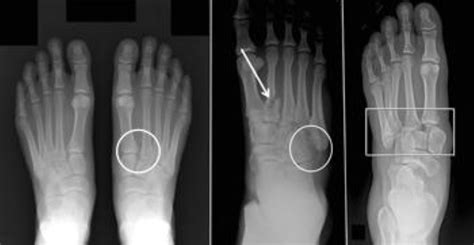 lisfranc injury midfoot fracture foot normal injuries left symptoms subtle types