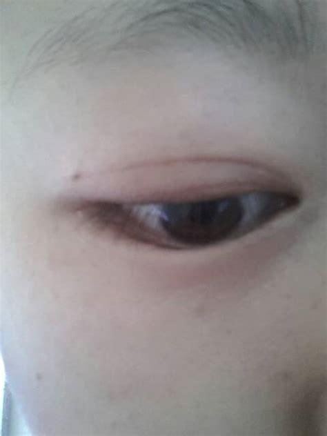 做双眼皮埋线,眼尾有黑点对眼睛有影响吗会感染发炎吗?用不用去掉?_百度知道