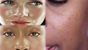 Best Beauty Products For Large Pores And Oily Skin