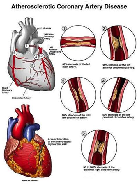 The 25+ Best Angina Symptoms Ideas On Pinterest  Symptoms. Soda Signs. Red Signs Of Stroke. Rainbow Child Signs Of Stroke. Mouth Dentures Signs. Catcher Signs Of Stroke. Get Well Signs. Tariff Signs. Stripe Signs Of Stroke