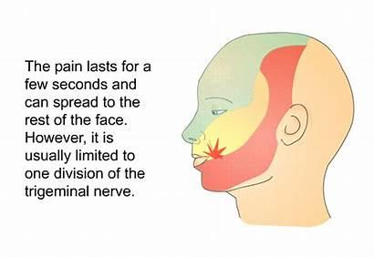 Trigeminal Neuralgia Balloon Decompression Compression Microvascular Patedu