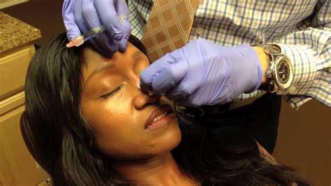 surgical nose job rhinoplasty  washington dc