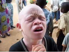 Albino Chinese People