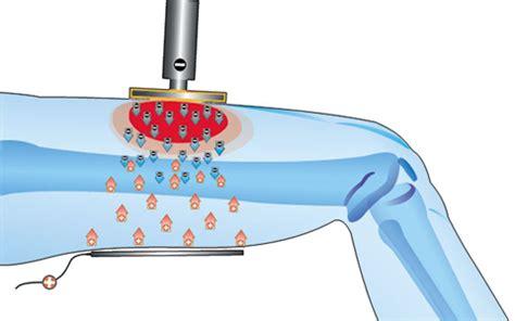 tecarterapia costo per seduta ultrasuoni e tecarterapia per l artrosi al ginocchio