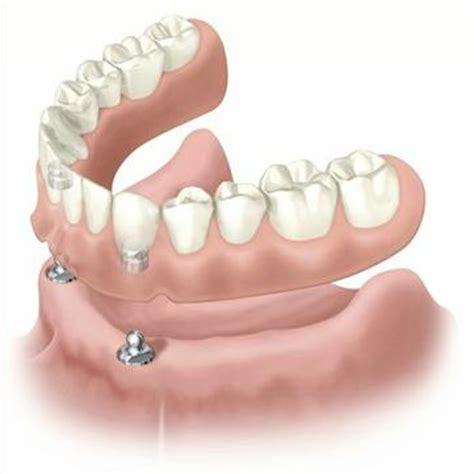 protesi dentaria mobile cura della pelle