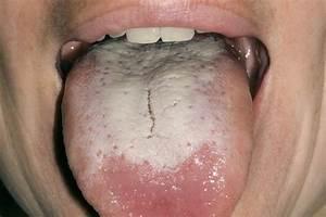Coated or white tongue - NHS.UK