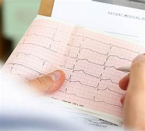 Free Ecg Lead Placement Guide