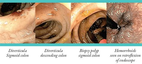 Colonoscopy Patient Information from SAGES