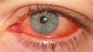 Epidemic Keratoconjunctivitis  Ekc