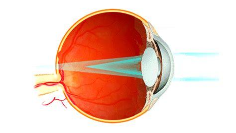 si e l or l astigmatismo iapb italia onlus