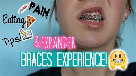 4 ways to deal with a palate expander wikihow. Expander & Braces Experience: Pain, Eating and Tips! - YouTube