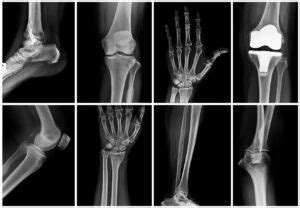 Walk-In X-Rays In the DC Area | Radiology Imaging Associates
