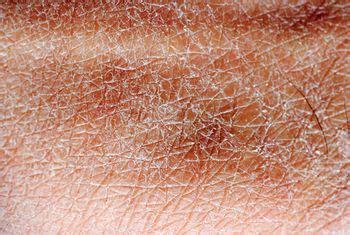 Dry Skin — Advanced Dermatology