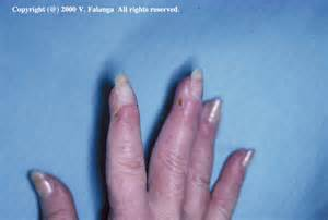 Scleroderma Ulcers On Fingers