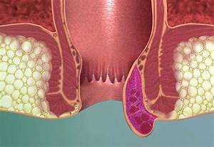 Наружный геморрой тромбоз