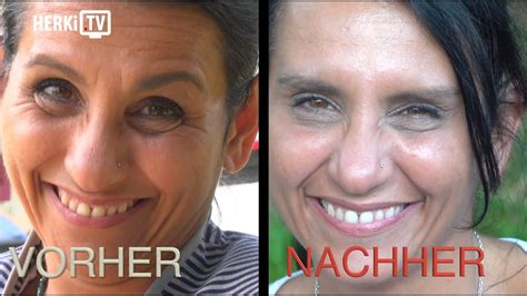 tv medical beauty cologne neuartige botox behandlung
