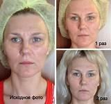 Массаж для лица от морщин до и после