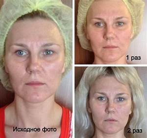 Массаж лица шеи и декольте от морщин суперметодика техника массажа лица