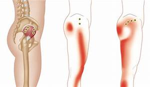 Trigger Point Therapy - Gluteus Minimus – Niel Asher Education