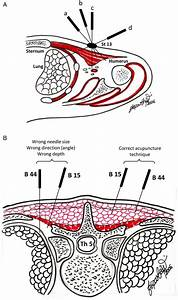 The Importance Of The Depth And Angle During Acupuncture