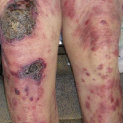 Diffuse Rash With Associated Ulceration | MDedge Dermatology