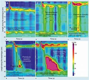 Esophageal Motility Disorders On High Resolution Manometry