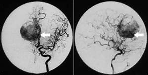 Preoperative angiography. Anteroposterior and lateral ...