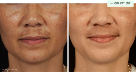 cosmetic dermatology gallery    images