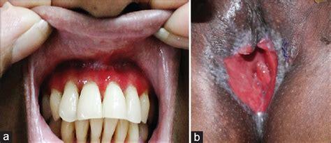 Vulvovaginitis causes, symptoms, and diagnosis jpg 809x352