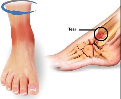 anterior tibiofibular ligament sprain : symptoms ...