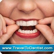 le led blanchiment dentaire blanchiment dentaire m 233 thodes pour blanchir les dents