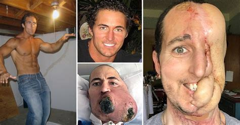Man Who Lost Half His Face To Cancer Successfully Has Face