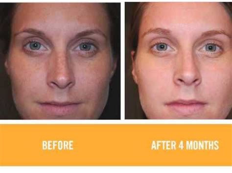 rodan  fields    pictures wow rodan