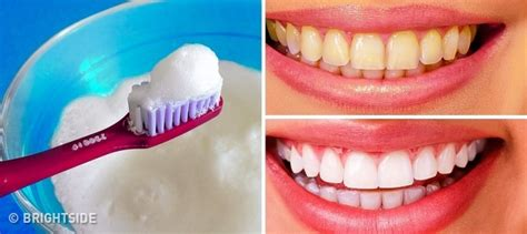 The 10 Best Ways To Naturally Whiten Yellow Teeth At Home