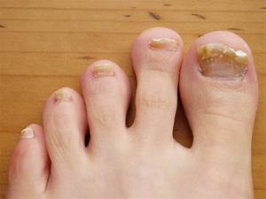 Toenail Fungus – Causes, Treatment and Prevention – Health ...