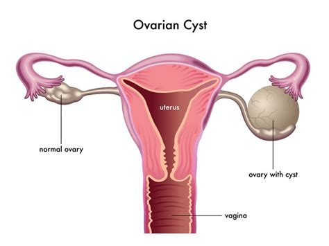 Ovarian Cysts – Complete Women Care