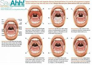 Image Gallery normal throat