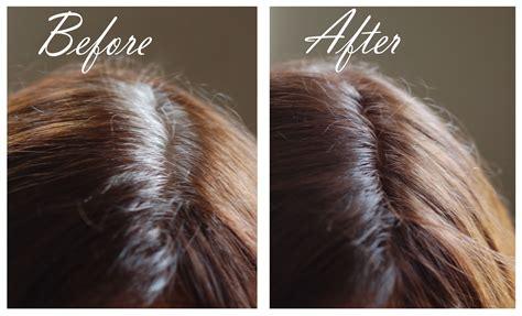 Brown Hair Or Hair On A by Brown Hair Powder Saving Grace Hair