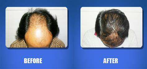 Hair Harmony and You - Visakhapatnam, India