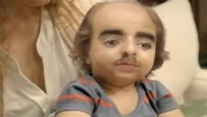 Ugliest baby in the world has bad genes - YouTube