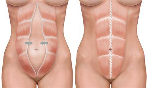 diastasis recti repair  tummy tuck surgery
