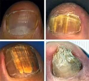 Доктор мясников лечение грибка на ногах