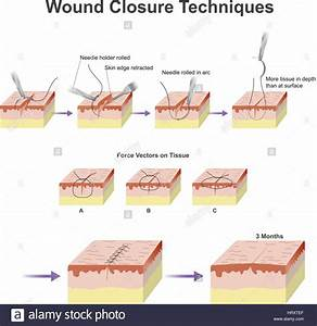 A Wound Is A Type Of Injury Which Happens Relatively