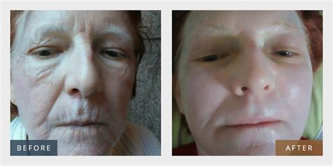 Shed a few years with rejuvenating anti-aging skin
