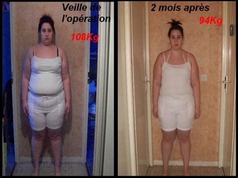 Photos Avant Et 2 Mois Après